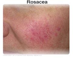 rosacea_4