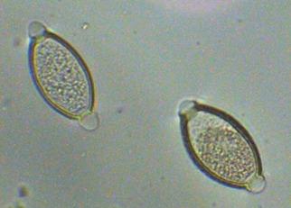 Ovos de Trichuris trichiura