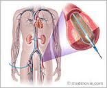 Peripheral Angio
