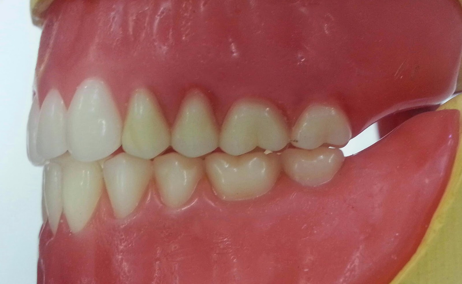 Mrs D's Dental Technology space for student: Posterior Occlusion