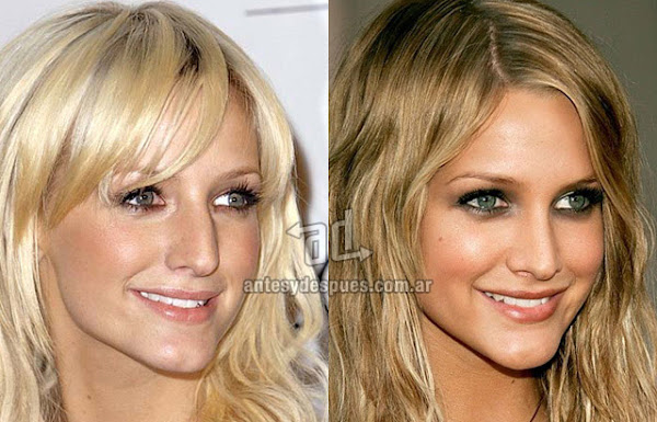 Celebrity Nose Jobs Before and After
