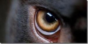 Glaucoma (4°parte)