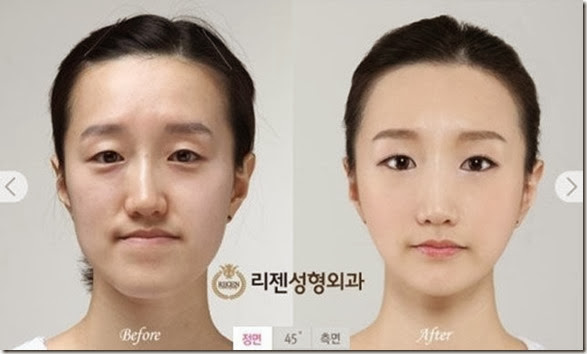 korean-plastic-surgery-2