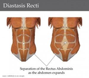 diastasis-recti-300x264