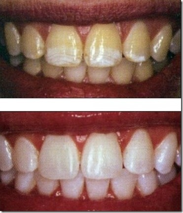 the bleaching of teeth a review During this procedure a rubber dam is put over your teeth to protect the gums, and a bleaching product is painted onto your teeth.