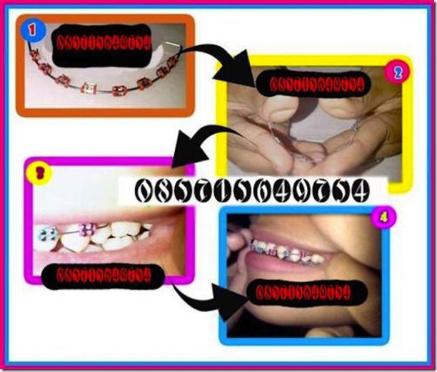 fake-braces-asia-trend-11