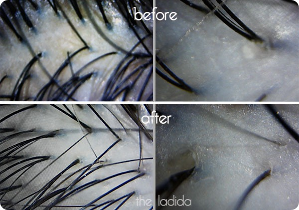 Suigo Hair Spa Treatment Camera Screenshot Before and After