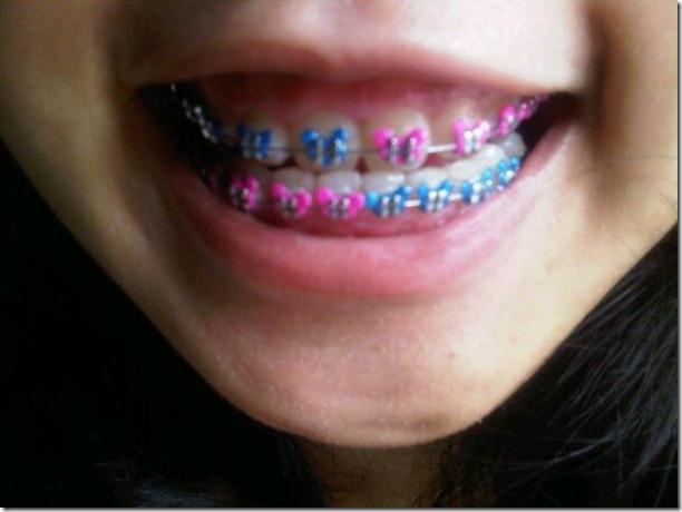 fake-braces-asia-trend-19