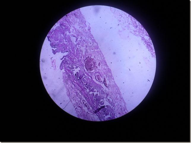 chronic cholycystitis