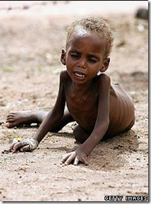 Somalia Famine Child