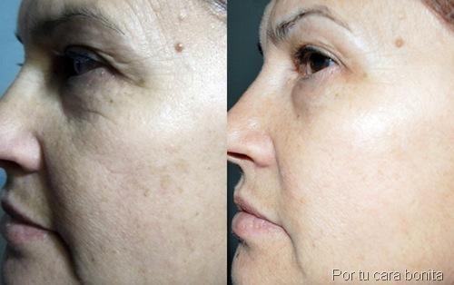 antes y despues tratamiento kit sos cosmetics27