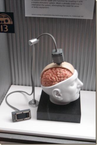 Braingate model wiki