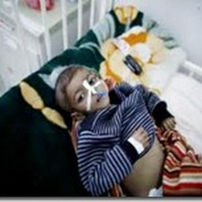 طبيب يمني يتعمد إصابة طفل بعاهة مستديمة لأن اسمه علي عبد الله صالح