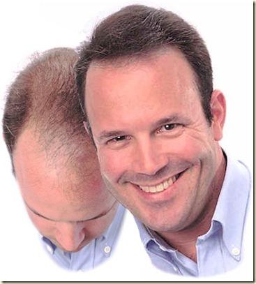 Los cabellos se rompen y caen las vitaminas para los cabellos