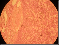Thyroid  Adenoma  high resolution histology slide tsnaps