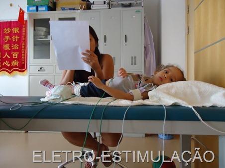 ELETRO-ESTIMULAÇÃO (2)