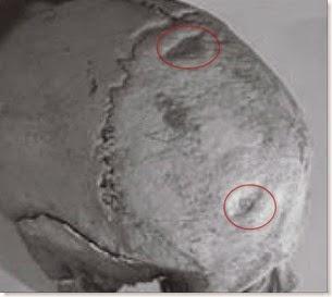 Cova d´En Pardo - Cráneo con muestras de agresión con arma