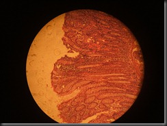 Adenoma Colon  high resolution histology slide tsnaps