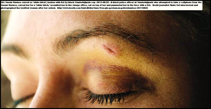 Harmse Naomi Vanderbijlpark cop beat her in the face with his fist Aug 25 2011