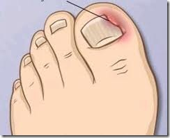 dor no dedão do pé