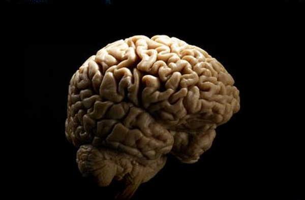 7- Os lados do cerebro