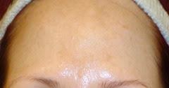 before using SkinPhD