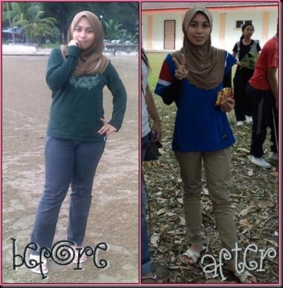 bfore n after