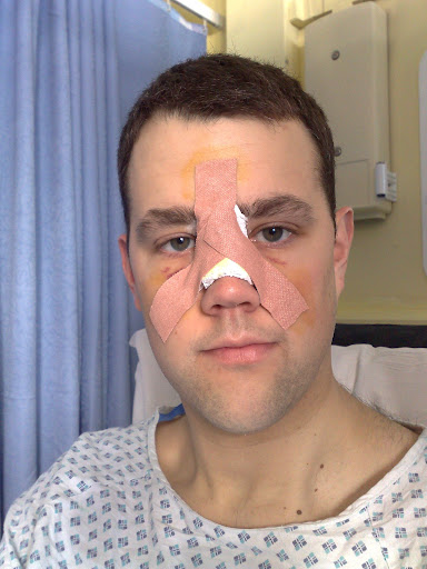 Post-op on Monday morning