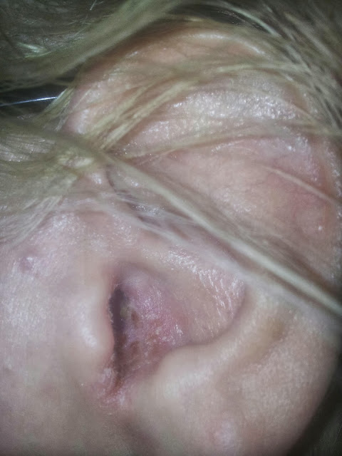 herpes i örat