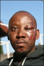 Mahlobogoane lawyer claims attacked by three white Vereeniging cops SowetanJun192011
