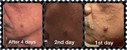 ... combination will developing it. It works on all types of skin cancer