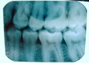 teeth-x-ray-17763-m