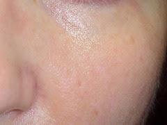 after SkinPhD cheek