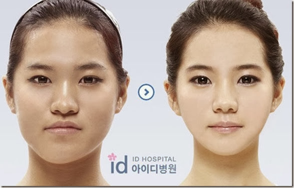 korean-plastic-surgery-4