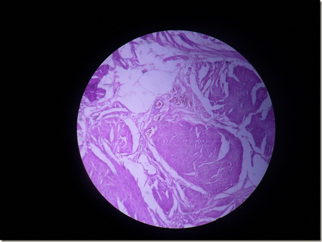 prostatic CA histopathology