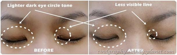 Evolu eye lip serum result