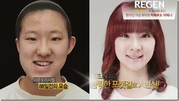 korean-plastic-surgery-21