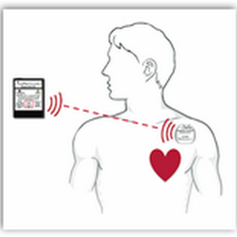 AngelMed Guardian System-Implanted Device to Alert Patients They Are Either Having or Are Close to a Heart Attack-Clinical Trials