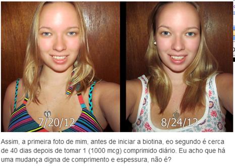 biotina antes e depois