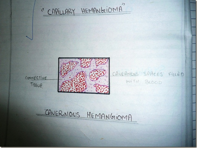 cavernous hemangioma diagram -histopathology
