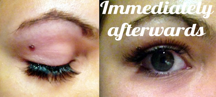 Eyelash extensions after