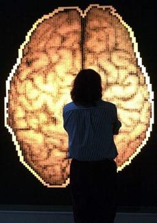 Análisis del cerebro