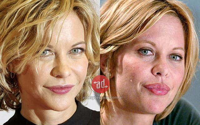 Famosos con botox, Meg Ryan