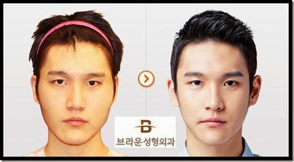 korean-plastic-surgery-46