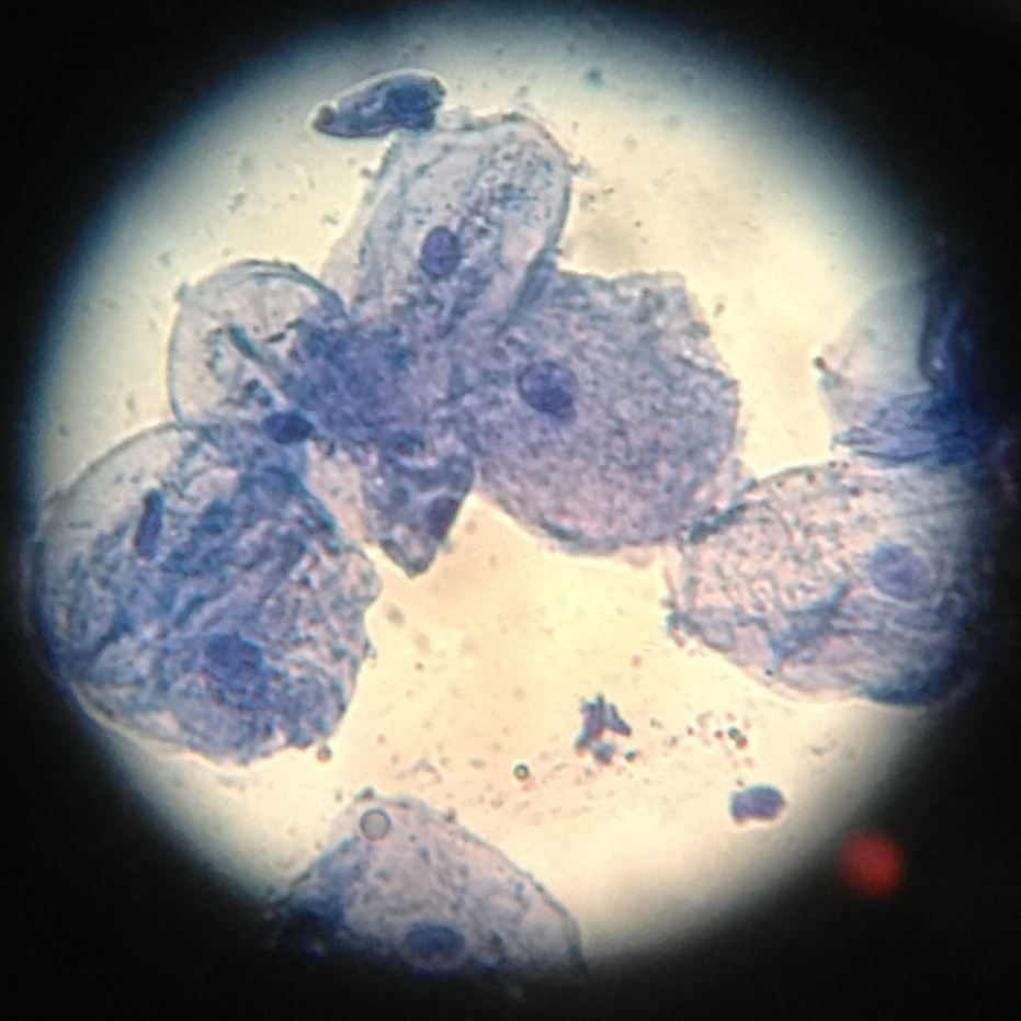 Cheek Cells Stermer James Jpg