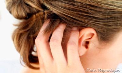 Como fazer o cabelo crescer se o problema esta na raiz do cabelo?