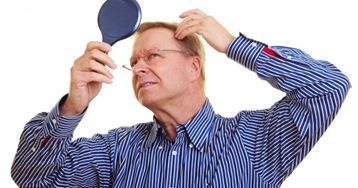 Como evitar la caida del cabello por estres