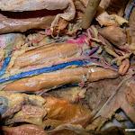 abdominal_aorta.JPG