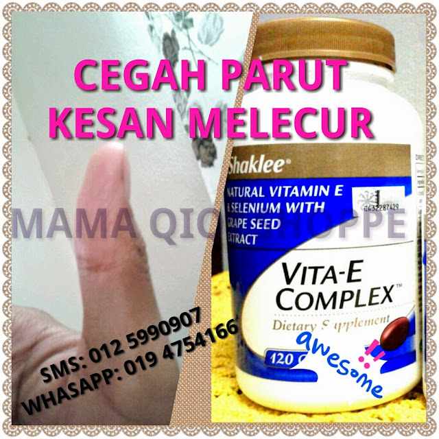 https://www.shaklee2u.com.my/widget/widget_agreement.php?session_id=&enc_widget_id=2f4ccb0f7a84f335affb418aee08a6df  Ataupun hubungi: