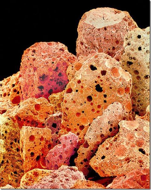 food-electron-micrograph-17